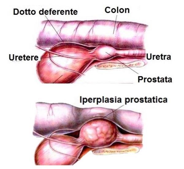 prostata ingrossata sintomi cane
